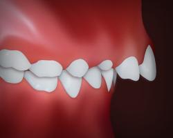 پروتروژن دندانی