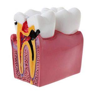 پوسیدگی دندان  Tooth decay