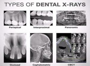 انواع رادیوگرافی دندانپزشکی